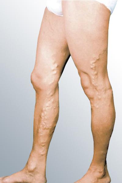 Как бобровой струей лечить колени 161