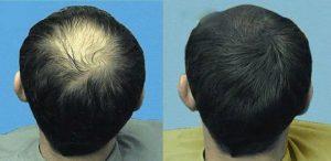 Hair megaspray - kde koupit - heureka - lékárna - prodejna