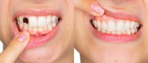 Happy Smile - výsledky - recenze - forum - diskuze