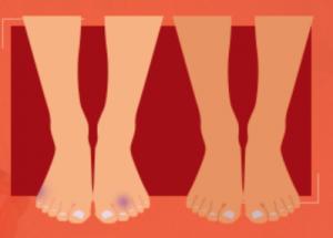 Bolesti kloubů a kostí diskuze