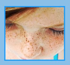 Bright Skin - diskuze - forum - výsledky - recenze