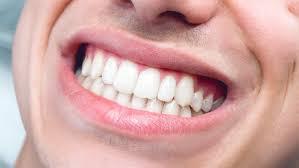 OralCare Pro - cena - prodej
