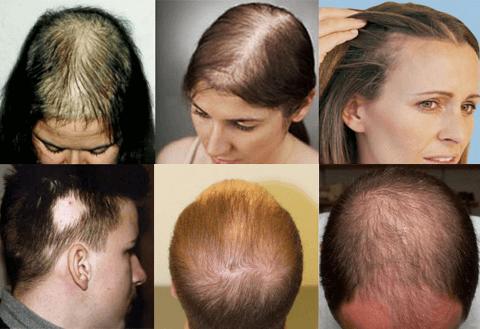 Hair Intense - forum - výsledky - recenze - diskuze