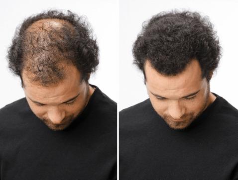 Hair Intense - heureka - lékárna - kde koupit - prodejna