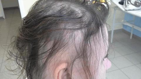 Hair Intense - prodej - cena