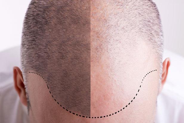 Hairstim - recenze - forum - diskuze - výsledky