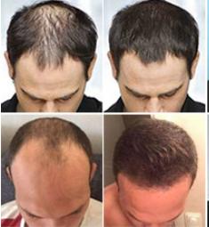 Grow Hair Active - forum - výsledky - recenze - diskuze